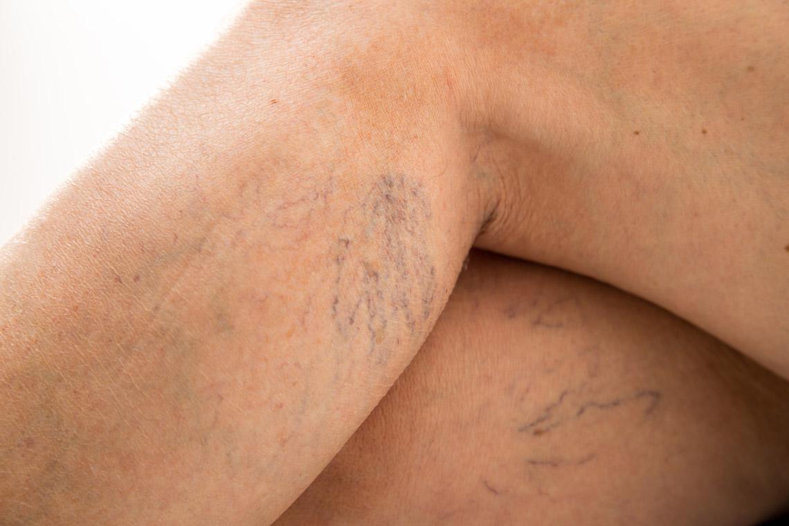 skleroterapia / obliteracja / fot.4