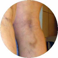 skleroterapia / obliteracja / fot.2