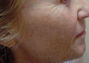Mezoterapia twarzy, szyi i dekoltu Łodź fot.2