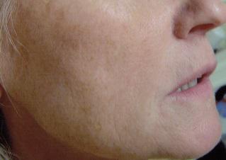Mezoterapia twarzy, szyi i dekoltu Łodź fot.3