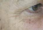 Mezoterapia twarzy, szyi i dekoltu Łodź fot.6