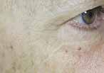 Mezoterapia twarzy, szyi i dekoltu Łodź fot.7